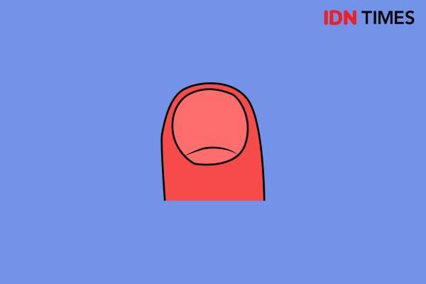 8 Bentuk Kuku Ini Gambarkan Sifatmu Lho! Kalau Punyamu Artinya Apa Ya?