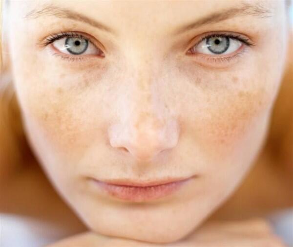 5 Beda Sun Spot vs. Dark Spot yang Harus Kamu Tahu, Jangan Ditukar Ya!