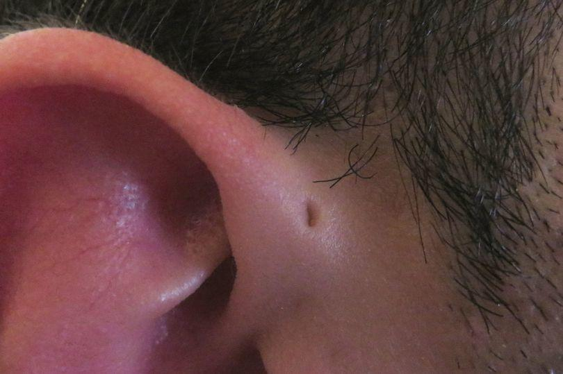 Punya Lubang Kecil Di Atas Telinga?? Ini Alasannya