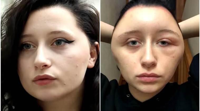 Wajah Wanita Ini Berubah 180° Dikarenakan Alergi Terhadap Pewarna Rambut