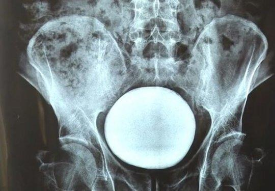 Kandung Kemih Abnormal Seukuran Dengan Melon Ditarik Keluar Dari Perut Seorang Pria