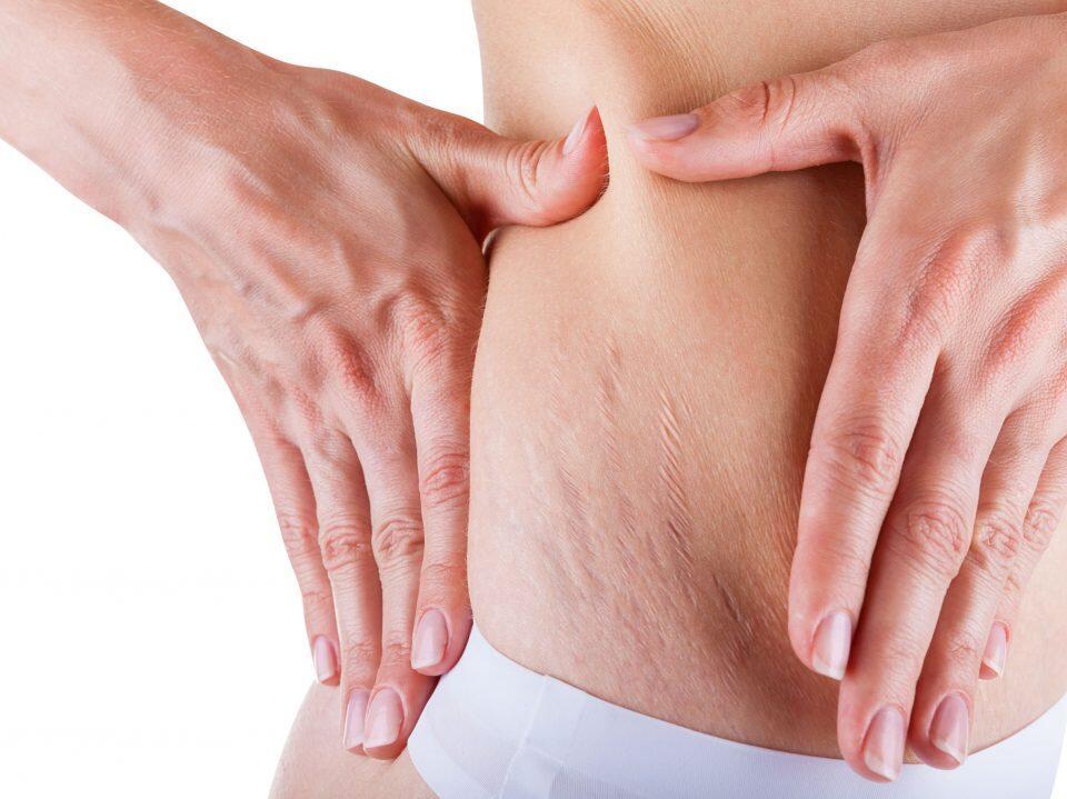 5 Manfaat Kolagen Untuk Kulit, Otot dan Usus Manusia