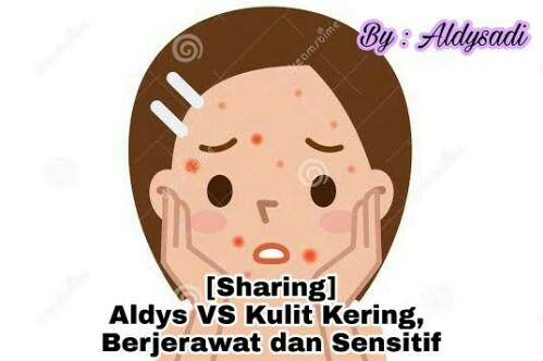 [Sharing] Aldys VS Kulit Kering, Berjerawat dan Sensitif