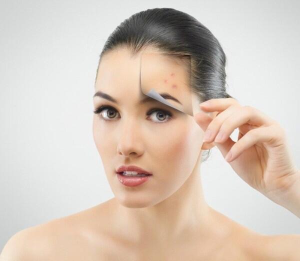 5 Alasan Jerawat yang Nempel di Wajah Perlu Sesegera Mungkin Ditangani