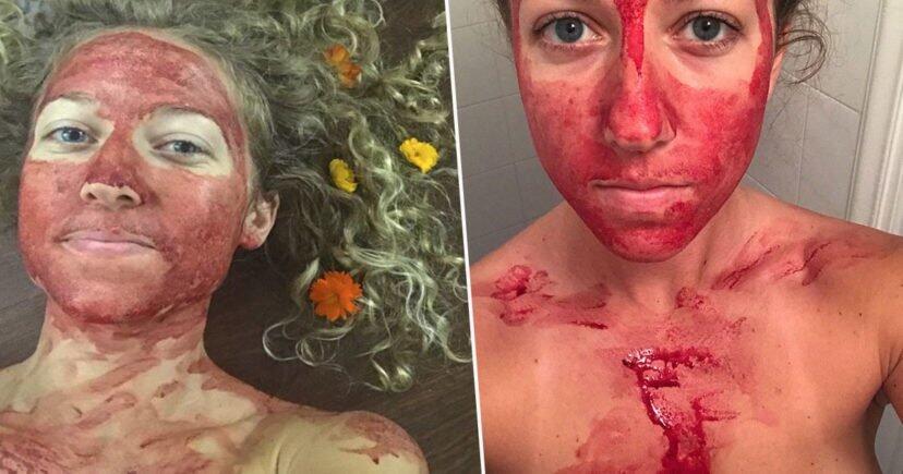 Wanita Ini Hobi Mengoles Darah Menstruasi ke Wajahnya, Kenapa Yaa?