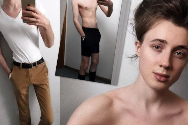 7 Fakta tentang Anoreksia, Gak Melulu Hanya Orang Kurus yang Mengalami