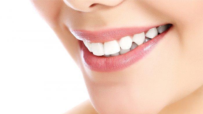 Minder Punya Gigi Kuning? Simak Cara Mengatasinya Tanpa Biaya Tinggi
