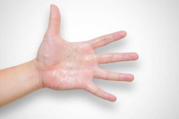 Jangan Dianggap Sepele, 5 Cara untuk Atasi Telapak Tangan Berkeringat!