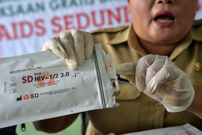Terapi baru untuk membunuh HIV