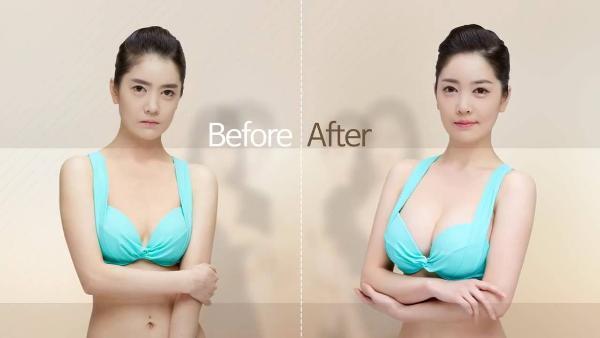 Ini Jenis Operasi Plastik Paling Banyak Peminatnya Di Korea Selatan