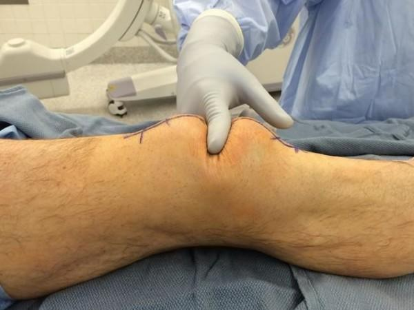 7 Macam Cedera Lutut yang Paling Sering Terjadi dan Cara Menanganinya