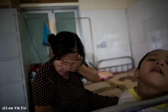 Foto Anak-Anak Korban Agent Orange Di Vietnam