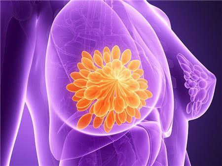 Apakah hiperplasia payudara berpotensi menjadi kanker payudara?