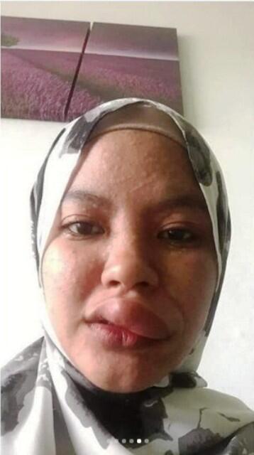 Lupa Pakai Masker Saat Naik Motor! Bibir Wanita Ini di Gigit Serangga Sampai Bengkak