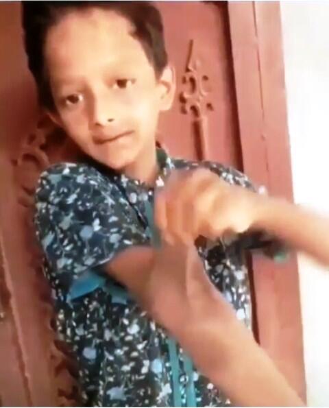 Mengerikan! Kulit Bocah ini Bisa Melar Seperti Monkey D. Luffy di Anime One Piece