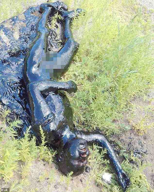 Jatuh ke Kolam Aspal, Kulit Pria Ini Jadi Keras dan Hitam