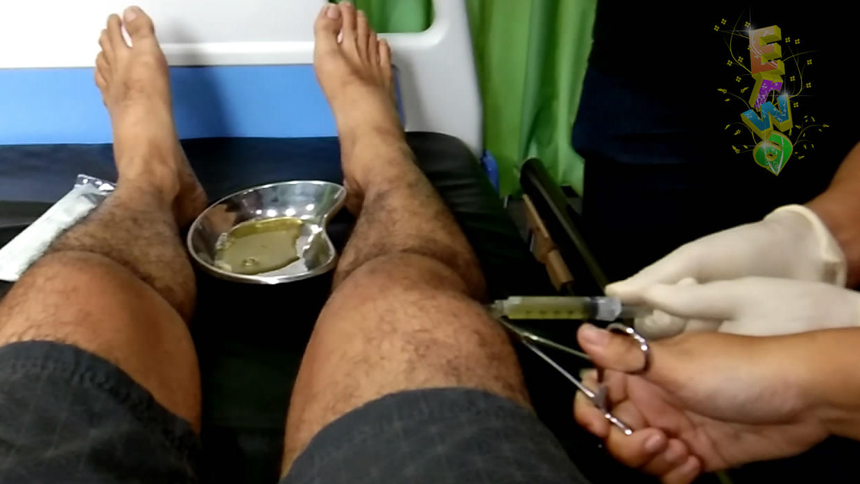 Sedot Cairan Di Sendi Lutut Karena Osteoarthritis