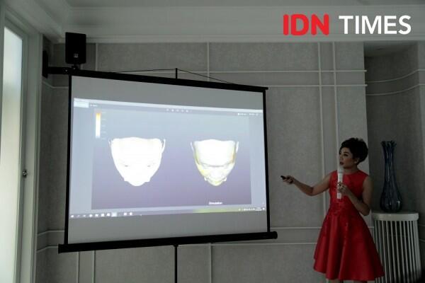 The Science of Facial Architecture, Metode Baru Bikin Wajah Awet Muda