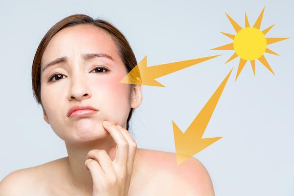 Hati-hati! Kesalahan dalam Penggunaan Sunscreen Bisa Bahayakan Kulitmu Loh!