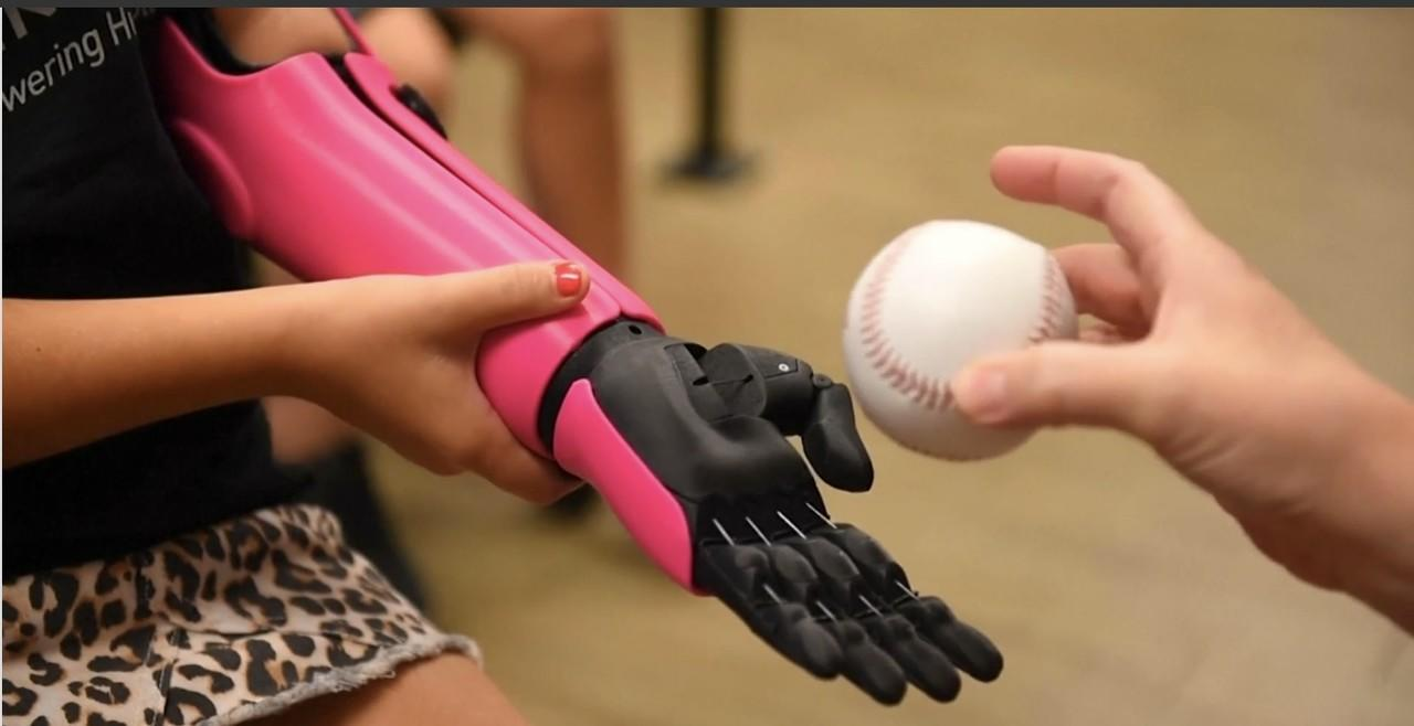 Perkenalkan Hero Arm, Tangan Robot Penuh Warna Untuk Disabilitas