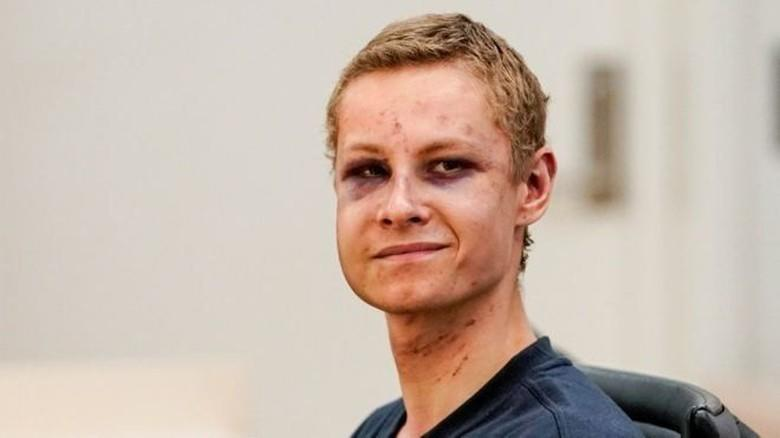 Pelaku Penembakan Masjid Norwegia Hadir di Pengadilan dengan Wajah Memar
