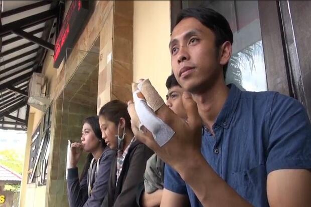 Sadis, 3 Jari Karyawan Kafe di Malang Remuk Dipalu Bos