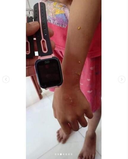Viral Meledaknya Smartwatch Harga Murah di Tangan Anak-anak Sampai Melepuh