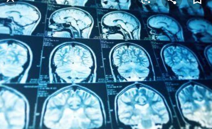Apakah Itu Prosopagnosia, dan Bagaimana Cara Mengatasinya?