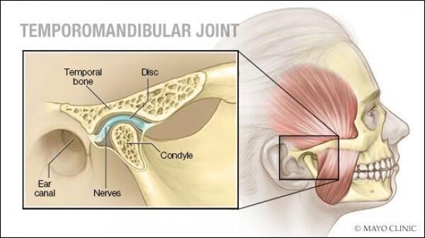 Kenali 7 Penyebab Sakit di Bagian Pelipis, dari Migrain hingga Tumor
