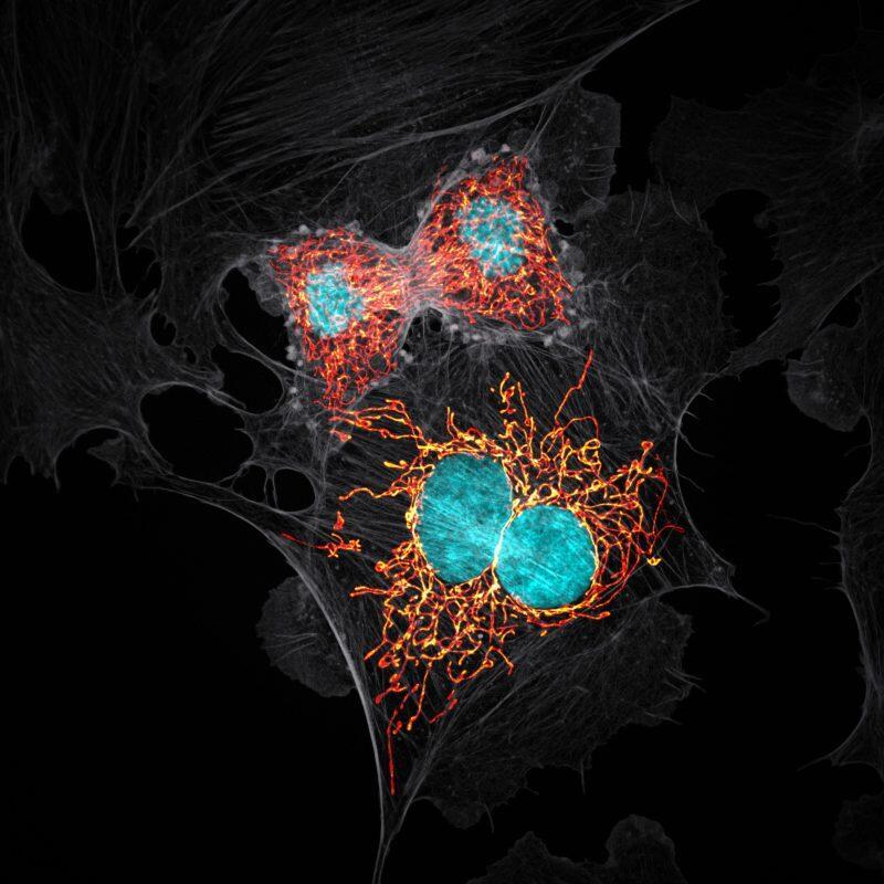 Wah Indahnya! 20 Potret Dunia Mikroskopis Yang Bakal Membuat Mu Terkejut