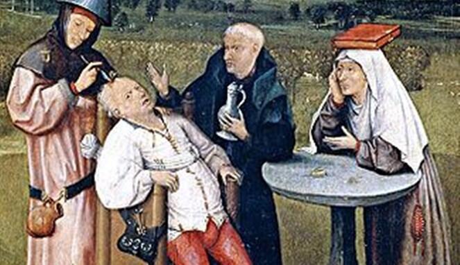 Trepanation, Sebuah Metode Pengobatan Zaman Dulu dengan Cara Mengebor Tengkorak!