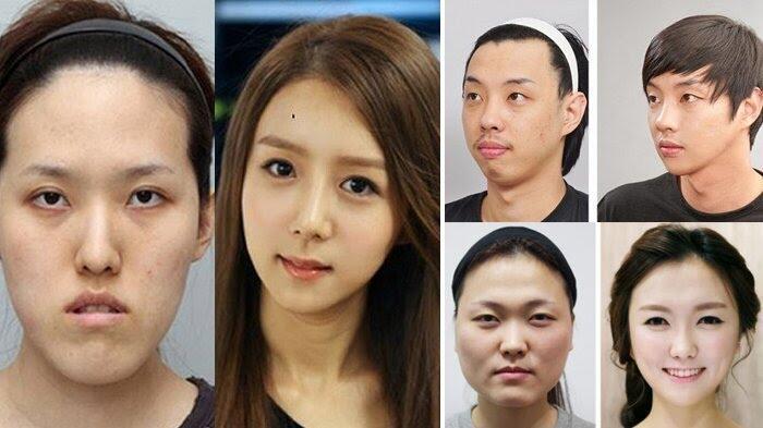 "4 Fakta Budaya ""Oplas"" di Korea Selatan, No 2 Ngubah Stigma"