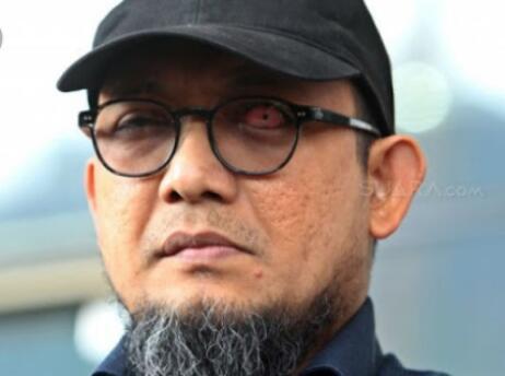 Pelaku Penyiraman Air Keras Novel Ditangkap, Semoga Bukan Gimik!