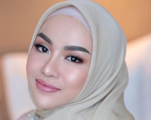 Portret Cantik Medina Zein Penggelapan Dana, Narkoba Hingga Bipolar