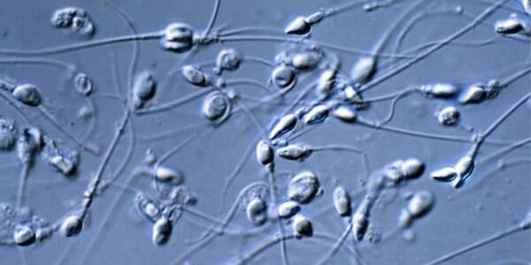 Donasi Sperma Diambil dari Jasad Wafat, Apakah Wajar dan Manusiawi?
