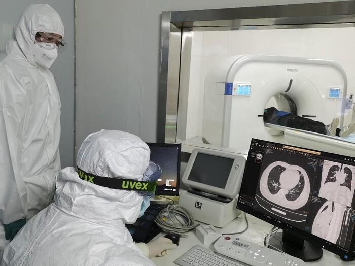 [BAHAYA] Ubah Diagnosis, Jumlah Kasus Virus Corona Cina Melonjak, Indonesia ??