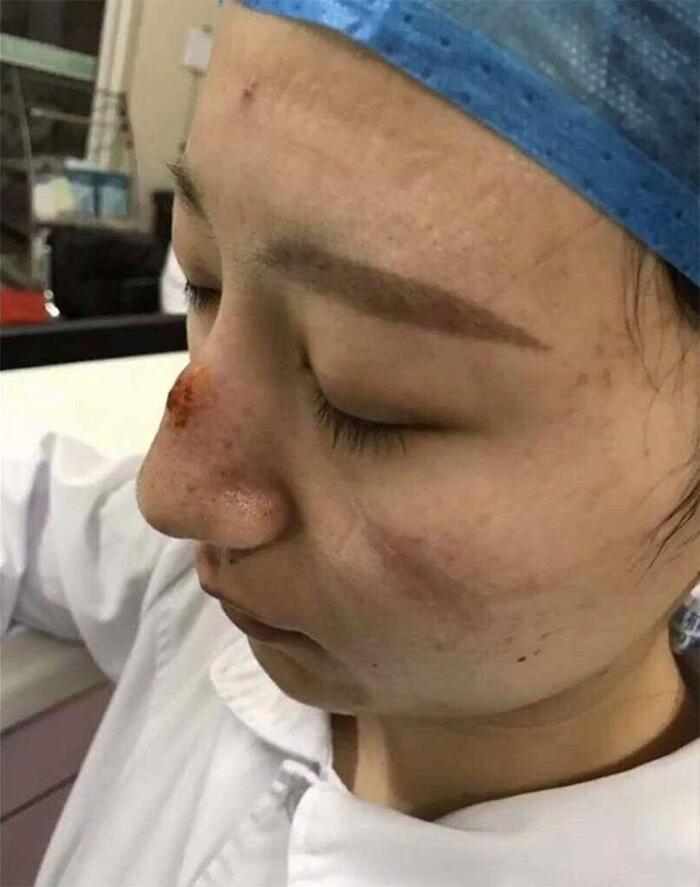 Potret Wajah Perawat Virus Corona China, Wajah Lebam Membiru karena Masker