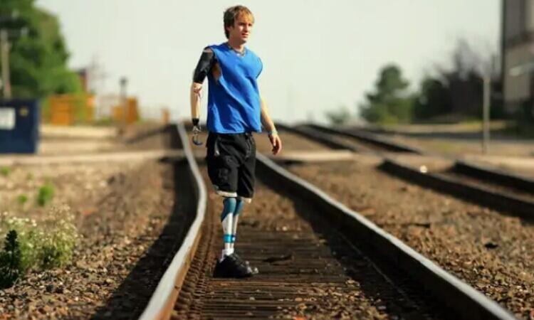 Mungkinkah Teknologi Cyborg Dapat Menghapus Bullying dan Body Shaming