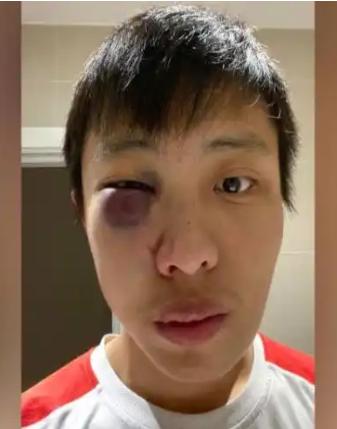 Kasus Perlakuan Rasis yang Diterima Orang Asia karena Corona: Dilempari Telur......