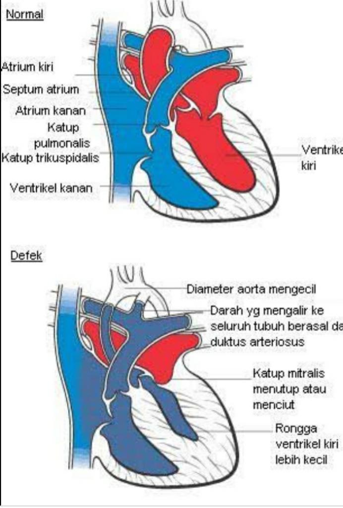 Mengenal Penyakit Sindrom Jantung Kiri Hipoplastik Pada Bayi