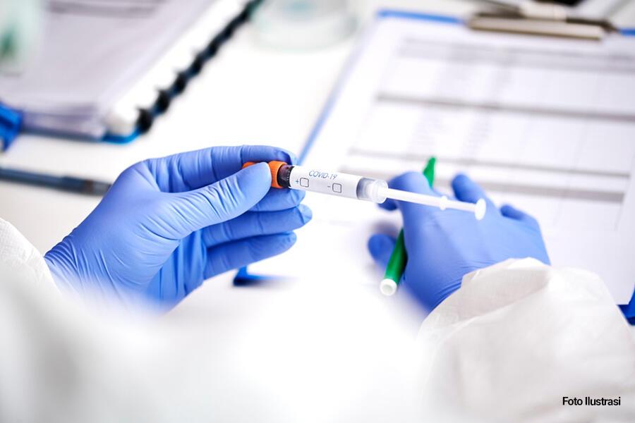 OPINI: Pandemi Menyikapi Rapuhnya Politik Pangan Kita