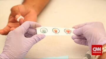 Studi Beberkan Pengaruh Corona di Golongan Darah A dan O