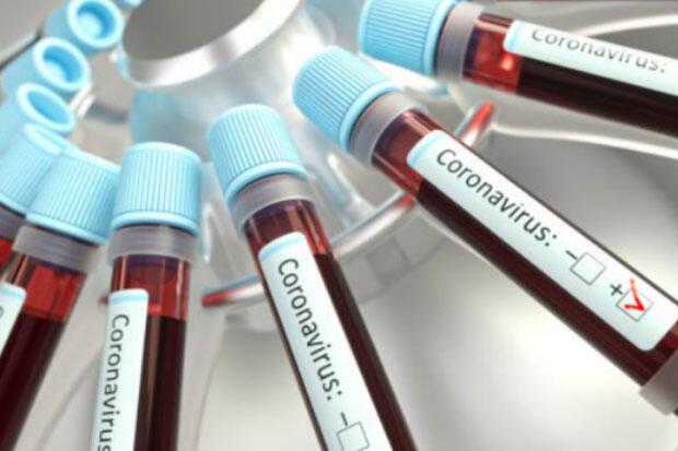 Antisipasi COVID-19, 4.636 Petugas Adhoc Pilkada Gresik Dirapid Test