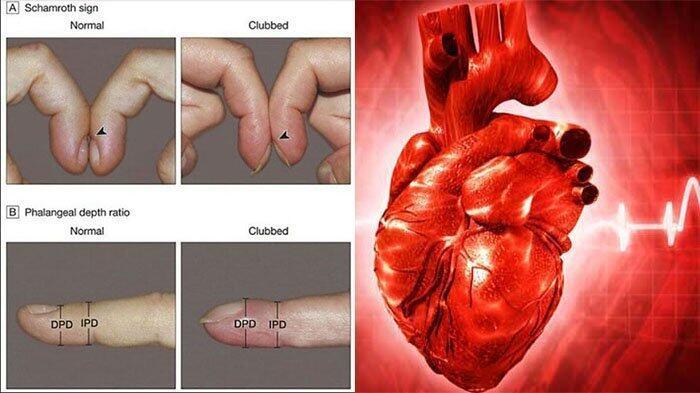 Penyakit Jantung dan Paru Bisa di Lihat Dari Kuku. Hah?