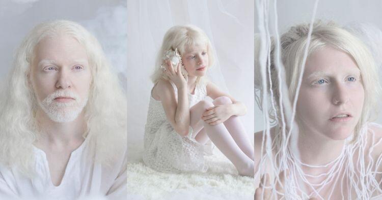 Tidak Hanya Manusia, Hewan Juga Bisa Menderita Albino! Cek Faktanya di Sini, yuk!