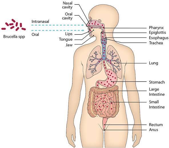 China Setelah Menularkan Virus Covid Kini Timbul Bakteri Brucellosis