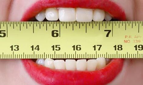 Hal Penting Diketahui Tentang Gigi Palsu, Baca Ini Dulu Jadi Tahu