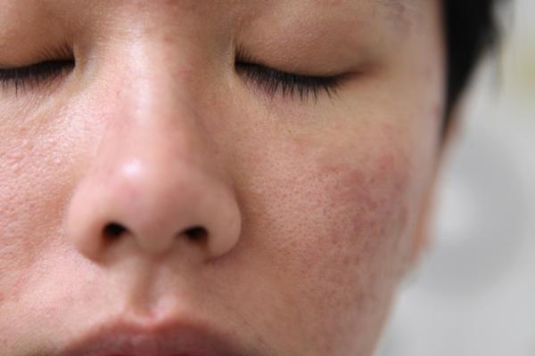 Sudah Pakai Skincare Tapi Kulit Wajah Masih Bermasalah? Ini Penyebabnya!