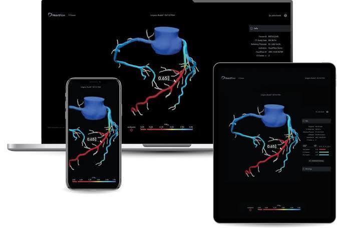 5 Kali Lebih Cepat, Teknologi 3D HeartFlow Bisa Diagnosis dan Analisis Sakit Jantung