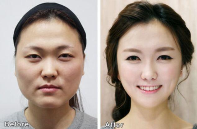 Apa yang Orang Korea Pikirkan tentang Operasi Plastik di Negaranya?